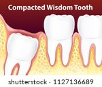 compacted wisdom tooth diagram... | Shutterstock .eps vector #1127136689