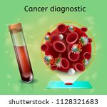 cancer diagnostic with... | Shutterstock .eps vector #1128321683