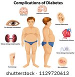 complications of diabetes... | Shutterstock .eps vector #1129720613