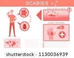 scabies causes and treatment... | Shutterstock .eps vector #1130036939