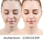 woman face before and after...   Shutterstock . vector #1130131349