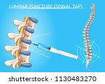 lumbar puncture or spinal tap... | Shutterstock .eps vector #1130483270