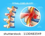 spinal cord injury vector... | Shutterstock .eps vector #1130483549