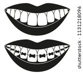 black and white teeth aligning...   Shutterstock .eps vector #1131218096