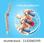 spinal disk herniation vector... | Shutterstock .eps vector #1132060190