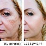 girl face wrinkles before and... | Shutterstock . vector #1135194149