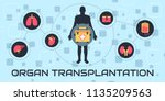 transplantation. the most... | Shutterstock .eps vector #1135209563