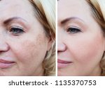 girl face wrinkles before and... | Shutterstock . vector #1135370753
