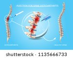 spine osteoarthritis injection... | Shutterstock .eps vector #1135666733
