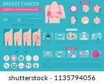 breast cancer  medical... | Shutterstock .eps vector #1135794056