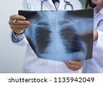health teamwork concept. two... | Shutterstock . vector #1135942049