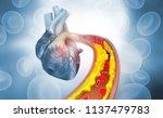 Cholesterol Plaque In Artery...