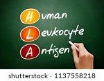 hla   human leukocyte antigen... | Shutterstock . vector #1137558218