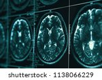 mri or magnetic resonance image ... | Shutterstock . vector #1138066229