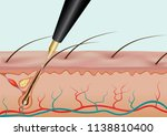 burning hair root with needle... | Shutterstock .eps vector #1138810400