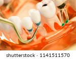 dentist cleaning teeth with... | Shutterstock . vector #1141511570