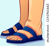 Swollen Feet  Vector...