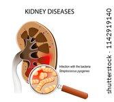 kidneys disease. human kidney... | Shutterstock .eps vector #1142919140