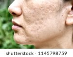 skin problem with acne diseases ... | Shutterstock . vector #1145798759