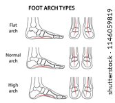 foot arch types. set of black... | Shutterstock .eps vector #1146059819