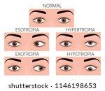 vector illustration of normal... | Shutterstock .eps vector #1146198653