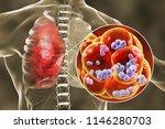 pneumococcal pneumonia  medical ...   Shutterstock . vector #1146280703