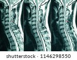 Small photo of C- Spines MRI scan of a patient with chronic upper extremities weakness showing herniated nucleus pulposus at C4-C5 levels. Chronic neck pain. Cervical disc herniation. Cord compression lesion.