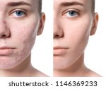 young woman before and after... | Shutterstock . vector #1146369233