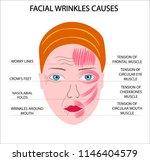 woman face scheme demonstrating ... | Shutterstock .eps vector #1146404579