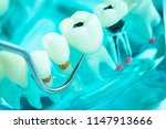 dentist cleaning teeth with... | Shutterstock . vector #1147913666