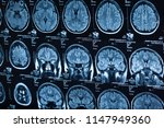the x ray of the human brain...   Shutterstock . vector #1147949360