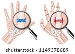 a human hand with rheumatoid... | Shutterstock .eps vector #1149378689