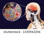 west nile virus wnv...   Shutterstock . vector #1150562246