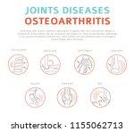 joints diseases. arthritis ... | Shutterstock .eps vector #1155062713