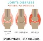joints diseases. arthritis ... | Shutterstock .eps vector #1155062806