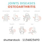 joints diseases. arthritis ... | Shutterstock .eps vector #1156825693