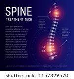 spine injury treatment  xray... | Shutterstock .eps vector #1157329570