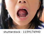 aphthous stomatitis underneath... | Shutterstock . vector #1159176940