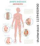joints diseases. arthritis... | Shutterstock .eps vector #1159450900