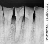 dental lab teeth digital x ray... | Shutterstock . vector #1160006119