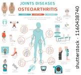 joints diseases. arthritis ... | Shutterstock .eps vector #1160438740