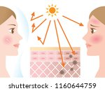 woman young adult face skin... | Shutterstock .eps vector #1160644759