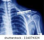 x  ray of collarbone | Shutterstock . vector #116074324