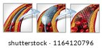 coronary stent and angioplasty... | Shutterstock . vector #1164120796