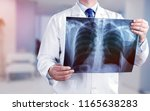 young male doctor examining x... | Shutterstock . vector #1165638283