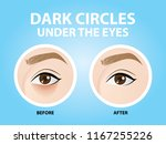 removal of dark circles under... | Shutterstock .eps vector #1167255226
