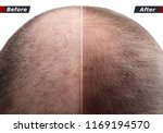 Small photo of Men hair after using cosmetic powder, cream, spray to thicken hair. Before and after