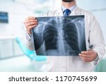 young male doctor examining x... | Shutterstock . vector #1170745699
