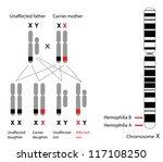 Genetics of hemophilia, A and B - stock photo