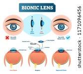 bionic lens vector illustration.... | Shutterstock .eps vector #1171096456